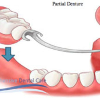 Dentist-Denture-Canberra