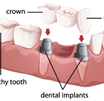 Multi-Teeth-Dental-Implant